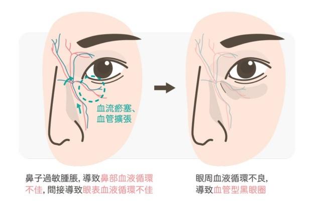 三步骤判断你的黑眼圈类型!黑眼圈的成因、分类、预防与治疗全攻略